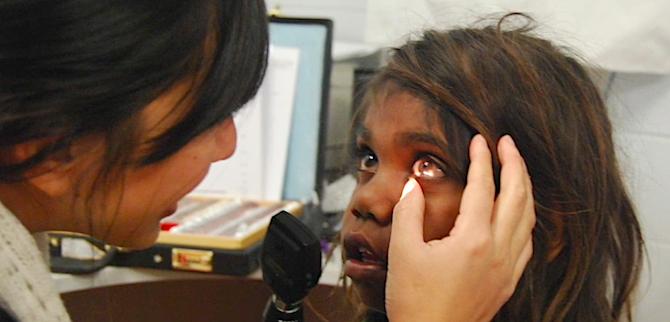 2621 trachoma pic 1 OK